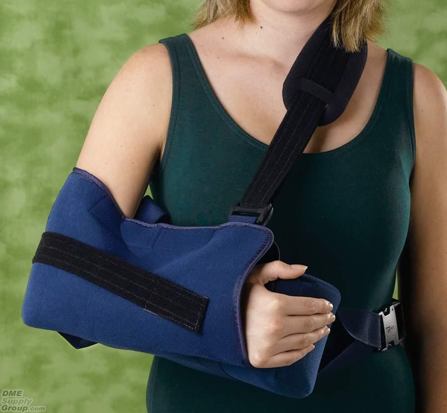bras cassé